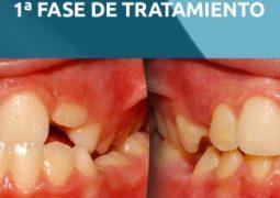 Curso de Tratamiento Ortodóntico en Dentición Mixta