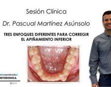 Sesión Clínica del Dr. Pascual Martínez: Tres casos de apiñamiento inferior